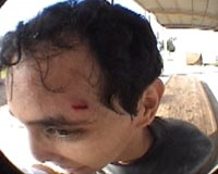 Rene con herida